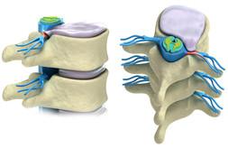 Wirbelsäule, Bandscheiben, Nerven, Schmerze, Globulix, Homöopathie, Katrin Reichelt, Globuli