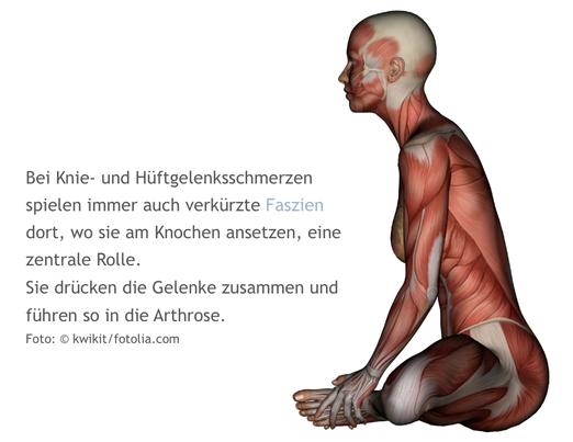 Knie, Hüfte, Schmerzen, Arthrose, Liebscher-Bracht, Globuli, Homöopathie, LNB, Osteopressur
