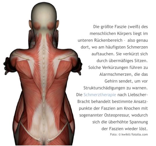 LNB, Schmerztherapie, Faszien, Liebscher-Bracht, Alarmschmerz, Homöopathie, Globuli, Globulix